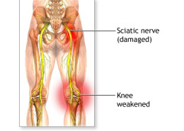 The in's and out's of Sciatica - Health Council