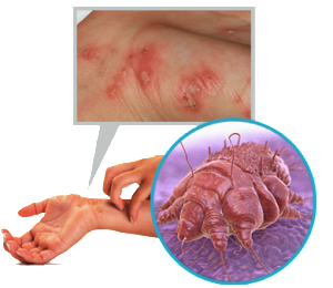 Patients at 2 New Hampshire medical centers warned of exposure to scabies | Fox News - Health Council