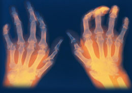 High Hopes for Individuals with Rheumatoid Arthritis - Health Council