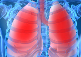 New Technology:View How Aggressive Lung Disease Develops - Health Council