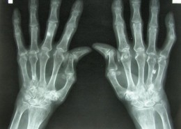 Breakthrough Technology For Bone Repair - Health Council