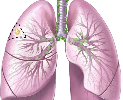Lung Cancer Mutation Responsive Discovery - Health Council
