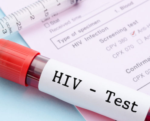 HIV Entry Mechanism Into immune Cell Nucleus Revealed - Health Council