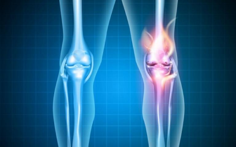 Lesão no joelho? O plano de saúde pode ser a solução!