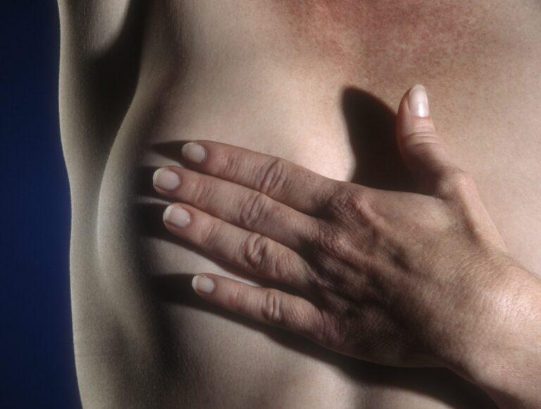 Os tratamentos ideais para o câncer de mama