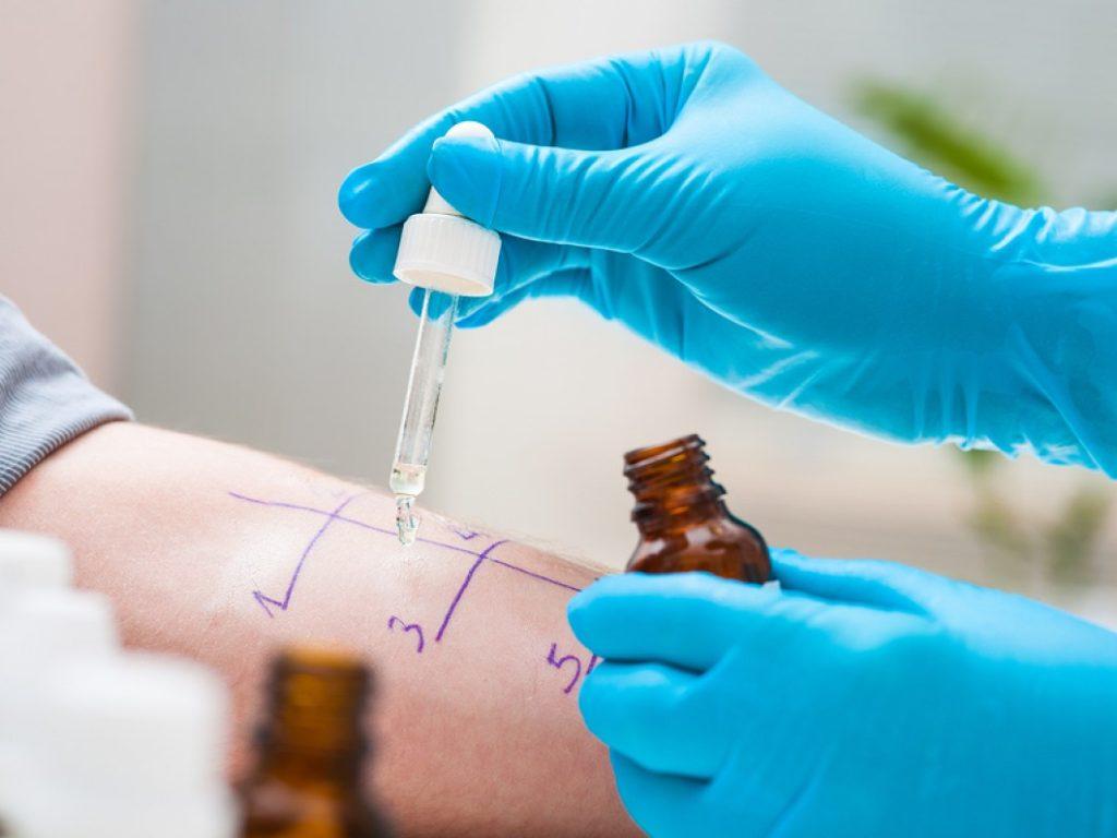 ]imagem de pessoa fazendo exames para verificar alergias