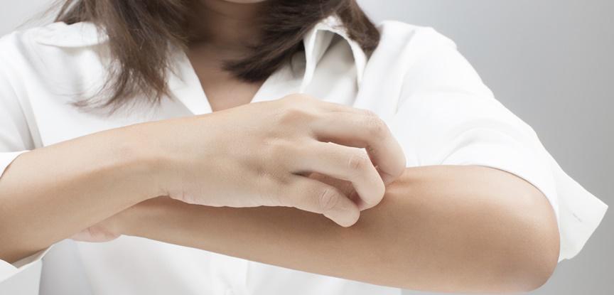 mulher coçando braço na região perto do cotovelo