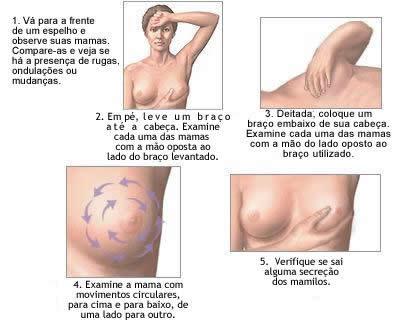 como fazer o teste do toque de mama
