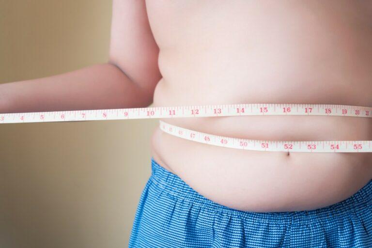 cirurgia de redução de estomago