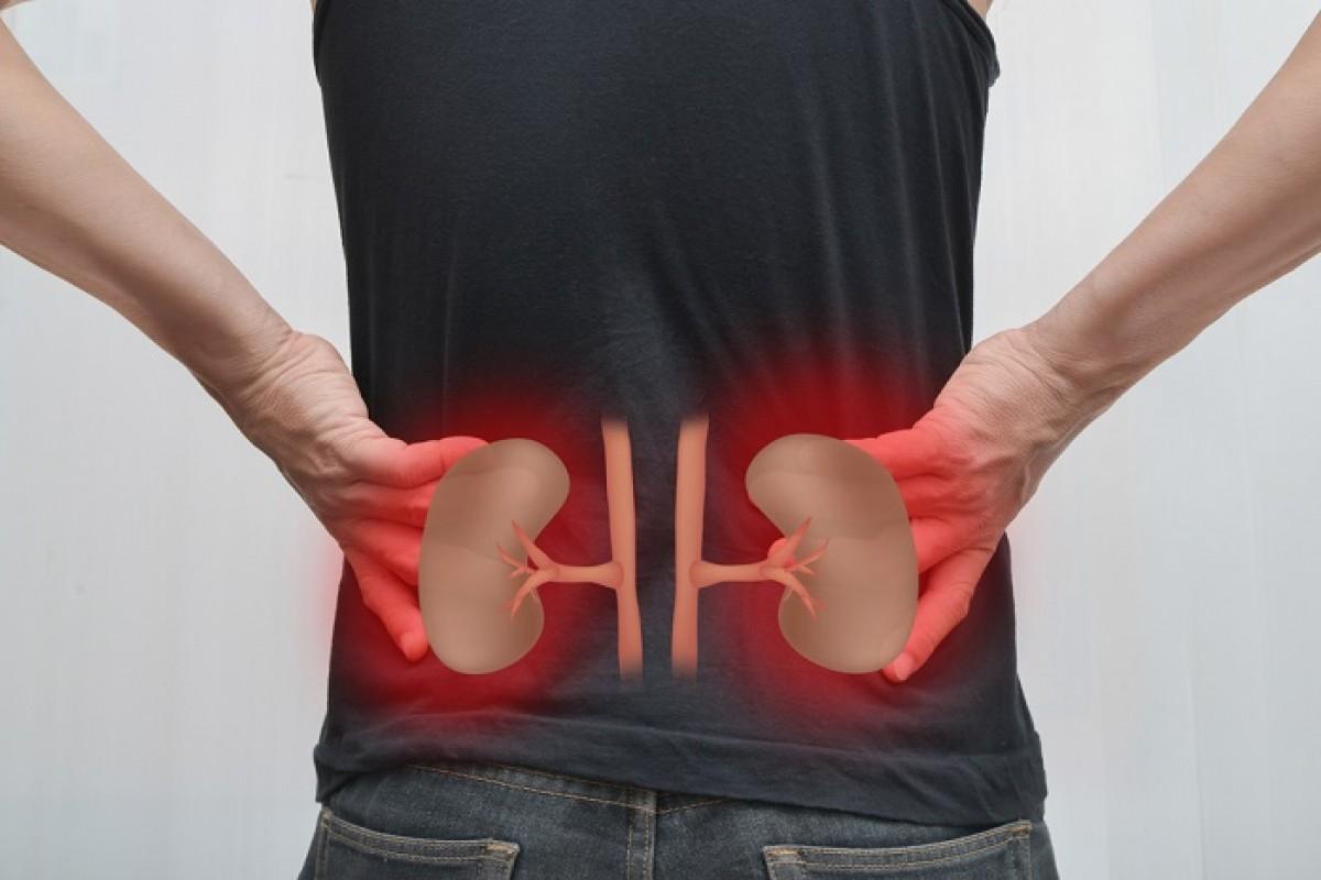 ilustração de dor nos rins com localização