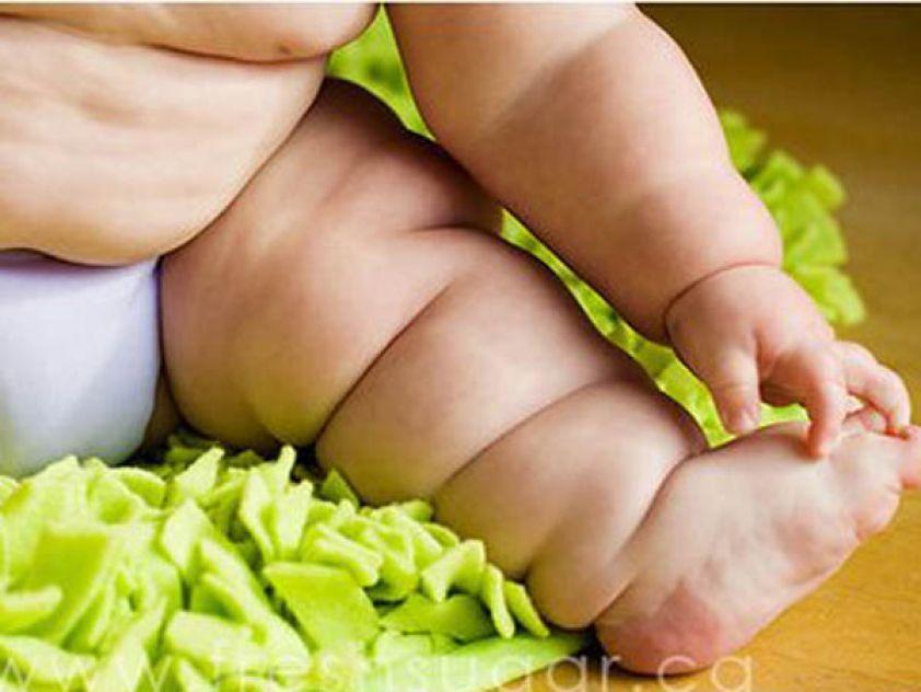 perna de um bebê com problemas de obesidade