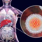 Tira Dúvidas sobre Hepatite: Tipos, Diferenças e Tratamento