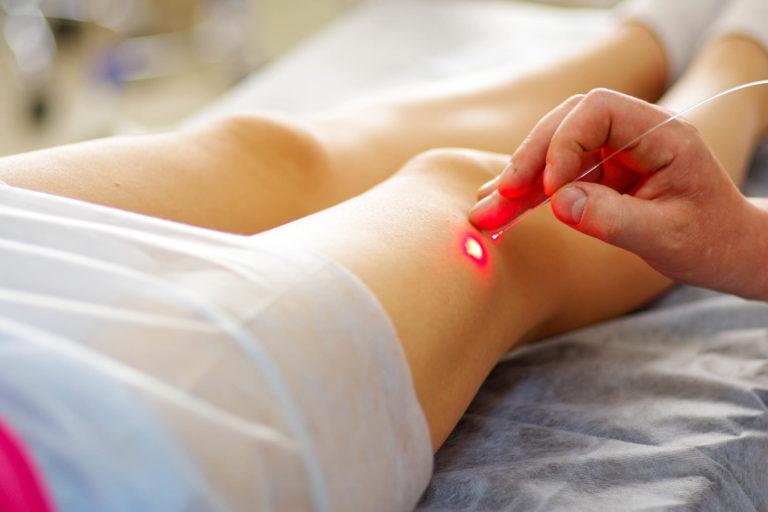 Tratamento de varizes: saiba como funcionam e quais os principais