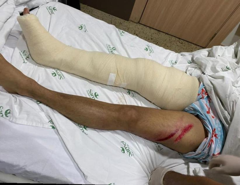 Josué Neto acidente de Jet Ski