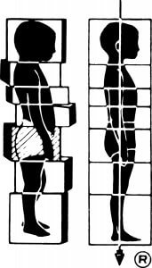 Rolfing New York City, Rolfing logo before and and after 10 sessions