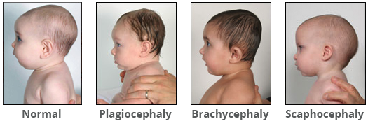 Profile images of babies with different head shape issues.