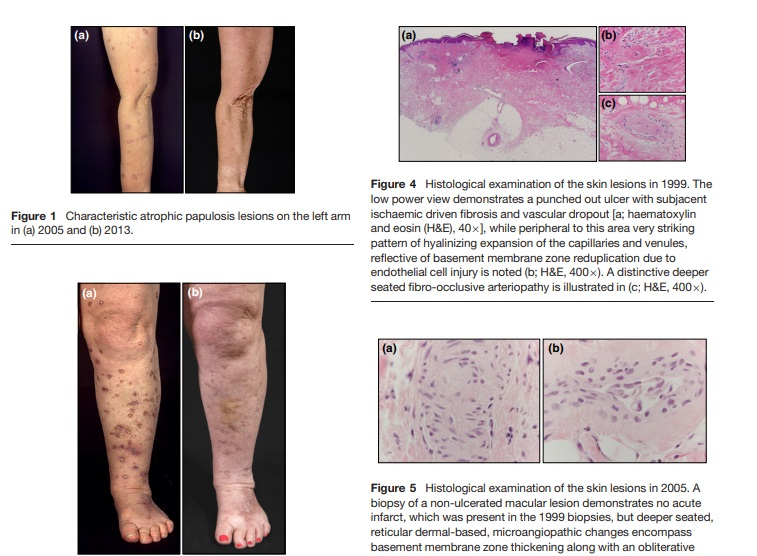 Benign atrophic papulosis – The wedge-shaped dermal necrosis can resolve with time