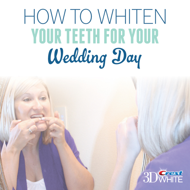 Wedding White Teeth: How To Whiten Your Teeth For Your Wedding Day