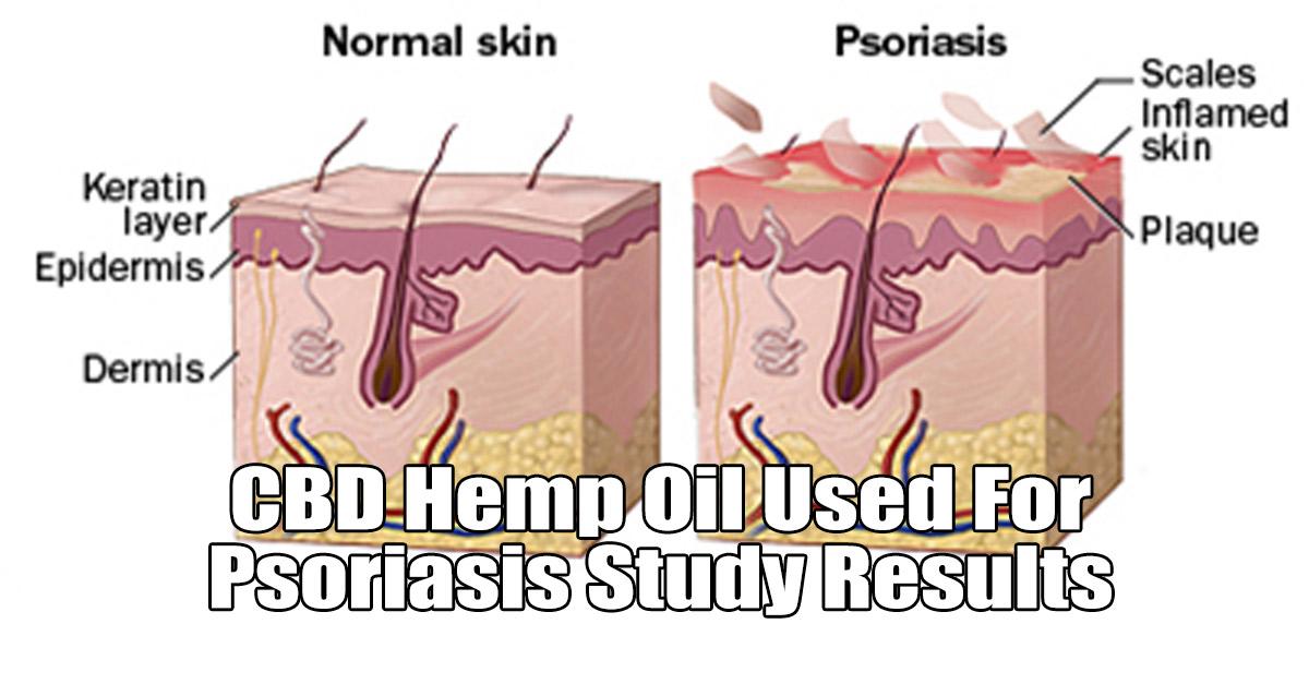 Hanföl für Psoriasis - kann ein großes Thema sein Elixinol