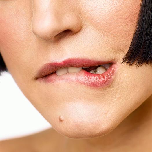 mole in chin