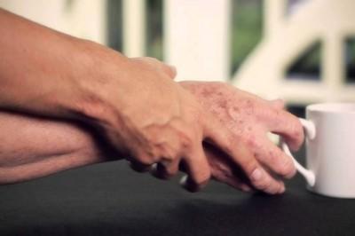 Solicitan aprobación de construcción para clínica especializada en Parkinson