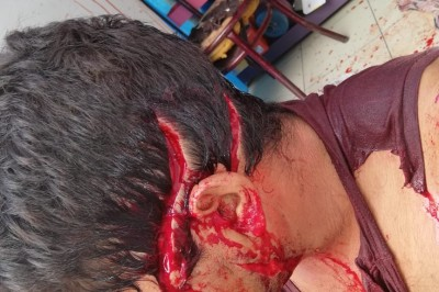 Un joven lesionado fue auxiliado  tras  ser agredido con un cuchillo