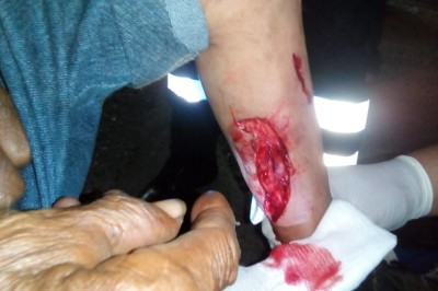Motociclista atropella a senecto  en Bulevar de Cosamaloapan