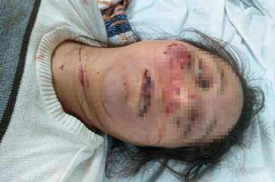 Hombre que mató a su esposa a golpes es buscado por autoridades de Zongolica