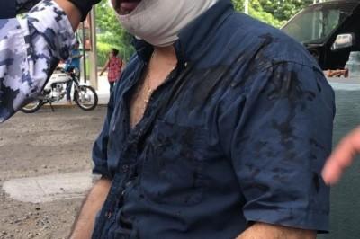 Tras pelearse por el estacionamiento, hombre es apuñalado en el ojo en Veracruz
