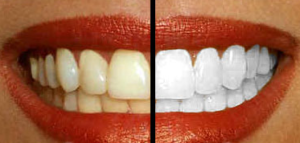 oil pulling teeth whitening