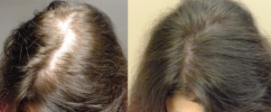 women's rogaine hair results