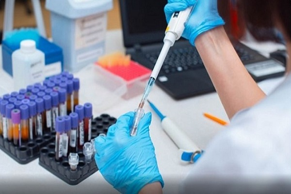 सिप्ला(Cipla Limited) से पहले ग्लेनमार्क फार्मास्युटिकल्स (Glenmark Pharmaceuticals) ने भी कोविड-19 (Covid-19) के लिए FabiFlu नाम की दवा लांच की थीl