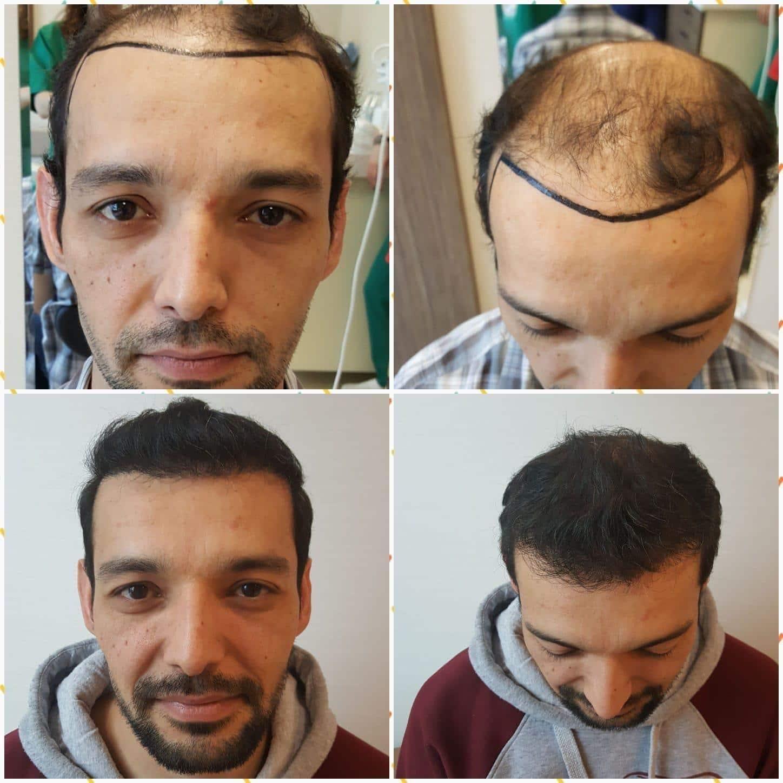 نتائج عملية زراعة الشعر في المركز الالماني لزراعة الشعر في تركيا