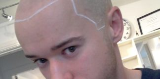 Hair Transplant in London