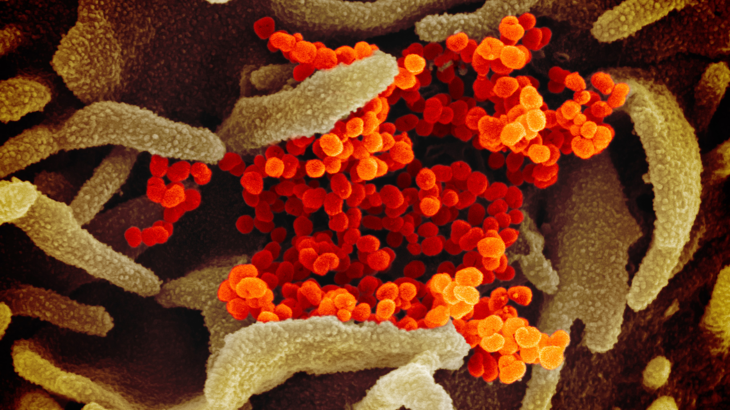 This scanning electron microscope image shows SARS-CoV-2 (orange)—also known as 2019-nCoV, the virus that causes COVID-19—isolated from a patient in the U.S., emerging from the surface of cells (green) cultured in the lab. (NIAID-RML)