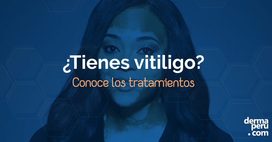 VITILIGO: ¿Qué es? ¿A quién afecta? ¿Cómo se trata?