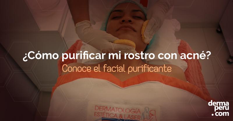 Limpieza Facial Purificante: Especial para piel con acné