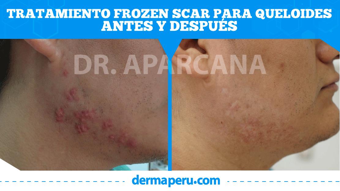 antes-y-después-de-queloide-dermaperu-tratamiento-frozen-scar-peru-draparcana