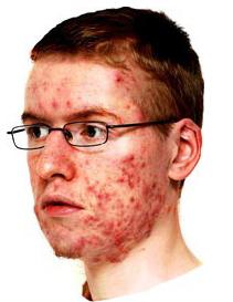Tratamiento de acné en lima peru dr aparcana