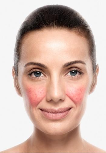 caso-de-rosacea-dermaperu-tratamiento-lima