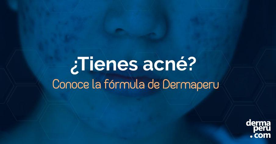 Diagnóstico especializado y obtener el mejor tratamiento de acné