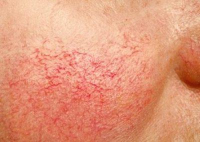 gtelangiectasia-tratamiento-dermaperu