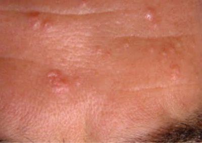 hiperplasia-sebacea-dermatoscopia-tratamiento-dermaperu-lima
