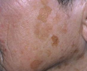 lentigo-facial-tratamiento-dermaperu